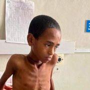 Fredsprisvinneren har ansvar for krise og hungersnød. Presset mot ham må bli hardere.