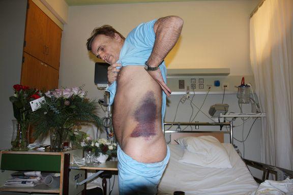 Eiendomsinvestor ble brutalt overfalt og mishandlet. Nå varsler en politimann om svak og mangelfull etterforskning.