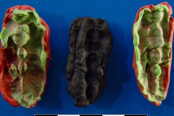 En ti tusen år gammel tyggis har gitt oss ny kunnskap om de første skandinavene