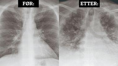 Slik så lungene til Terje Baakind (56) ut da han våknet etter fem uker i koma