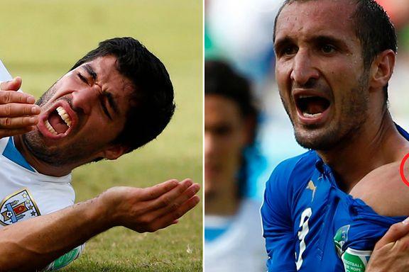 FIFA-topp hevder bitemerkene stammet fra kjæresten