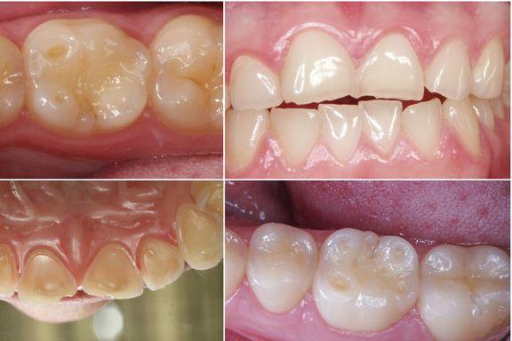 Syrlig drikke etser vekk tannemaljen på få uker. Slik kan det unngås.