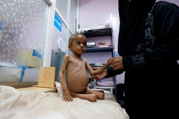 Mener Jemen er i ferd med å kollapse: - Et barn dør hvert tiende minutt