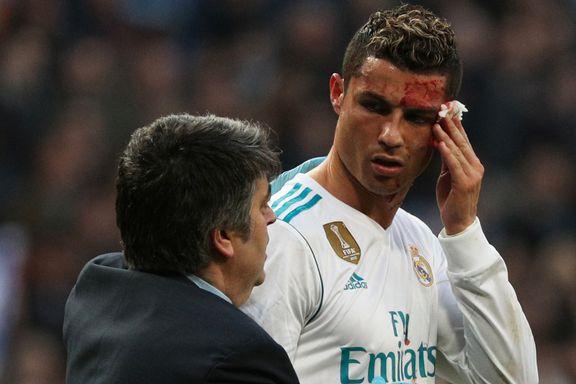 Ronaldo ble sparket til blods. Så sjekket han skaden med mobilen.