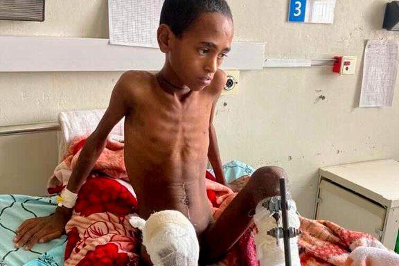 Legene som prøver å redde barna, besvimer av matmangel