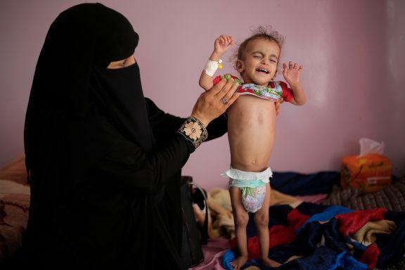 FN varsler om hungersnød i en skala verden aldri har sett før. Kan et nytt forslag være løsningen på konflikten?