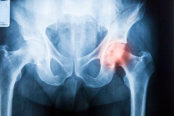 Stor nedgang i hoftebrudd i Norge - men forskerne vet ikke hvorfor