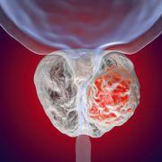 Ny og mer presis diagnostikk gir mindre overdiagnostisering av prostatakreft