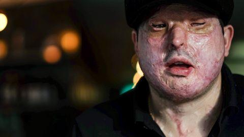 Frem til desember 2014 hadde Andreas Christopheros et normalt utseende. I dag er ansiktet til 32-åringen dekket av arrvev.