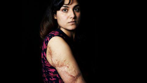 «Merket for livet» er en klisjé, men for Hasina Shirzad er det en realitet. Huden er misfarget og arrete etter bombeangrepet i mai 2014.