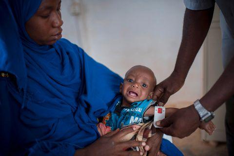 KRITISK: Når overarmen på lille Zakaria måles lyser det rødt, han er kritisk avmagret. Hundretusenvis av barn i Somalia står i fare for å dø av underernæring.