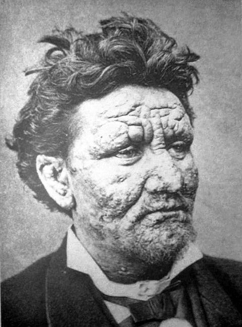 SYK: En 24 år gammel mann fra Sunnfjord, fotografert i Bergen til en større fransk studie av leprarammede i 1880-årene.