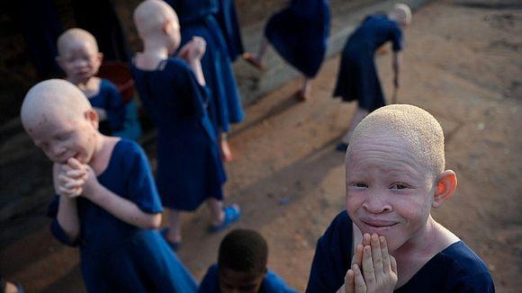 73b7334b Nådeløs jakt på albinoer - Aftenposten