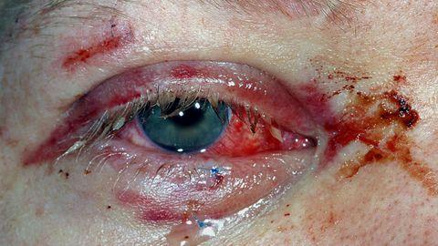 ØYENSKADER: Bildet viser en øyenskade etter en fyrverkeriulykke i 2016.