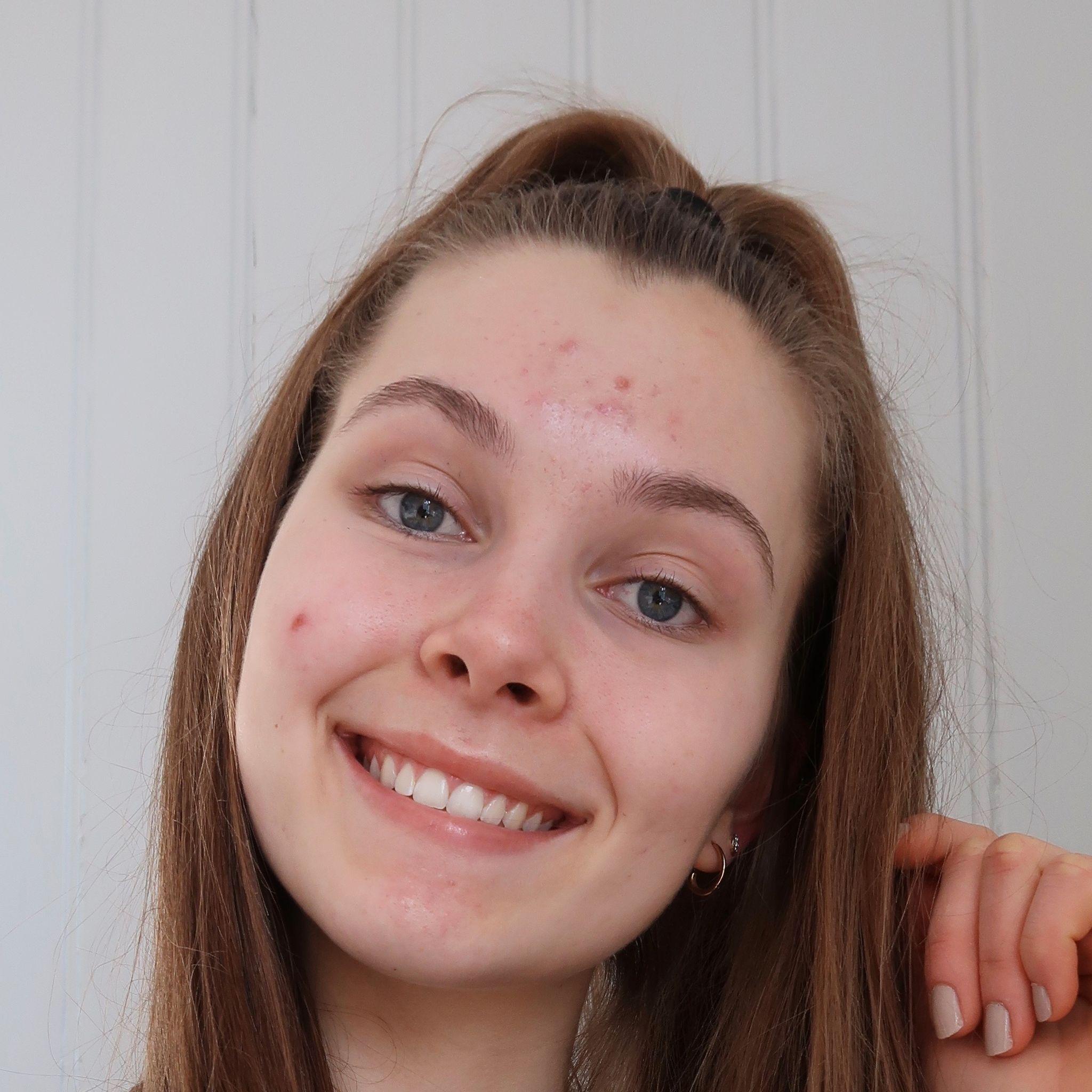 Mia Frostad Johansson (16)