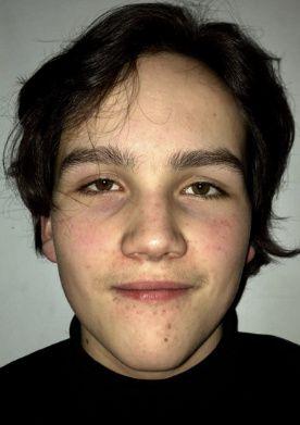 Erik Daniel Aubert (16)